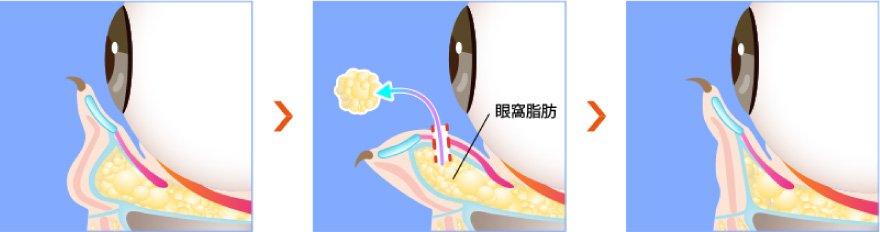 目の下から脂肪を除去